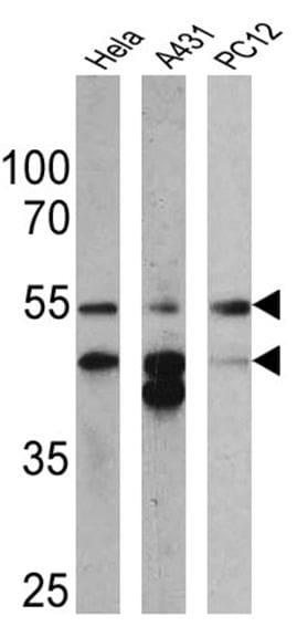 Cytokeratin Pan Antibody in Western Blot (WB)