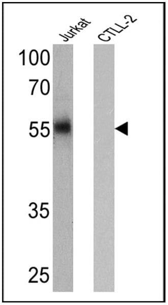 CD4 Antibody in Western Blot (WB)