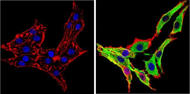 alpha Synuclein Antibody in Immunofluorescence (IF)