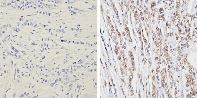 PTEN Antibody in Immunohistochemistry (Paraffin) (IHC (P))