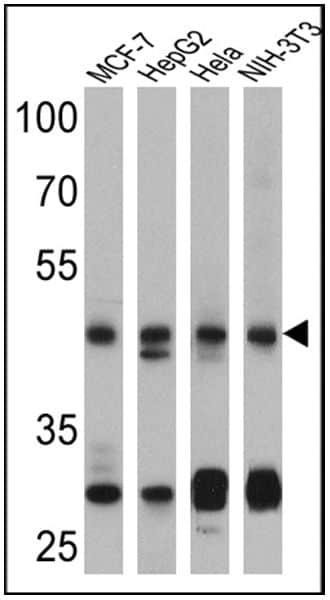 PTEN Antibody in Western Blot (WB)