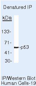 p53 Antibody in Immunoprecipitation (IP)