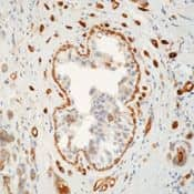 TGM2 Antibody in Immunohistochemistry (IHC)