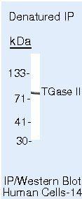 TGM2 Antibody in Immunoprecipitation (IP)