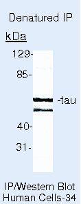 Tau Antibody in Immunoprecipitation (IP)