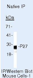 p27Kip1 Antibody in Immunoprecipitation (IP)