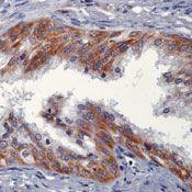 NRG1 Antibody in Immunohistochemistry (IHC)