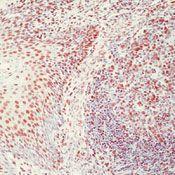 Ku70/Ku80 Antibody in Immunohistochemistry (IHC)