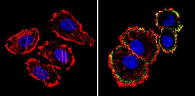 ErbB2 (HER-2) Antibody in Immunofluorescence (IF)