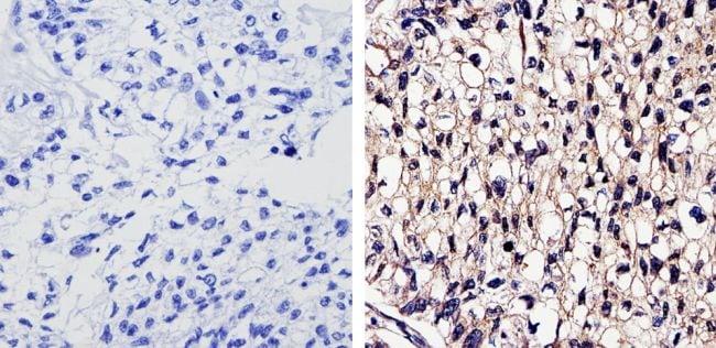EGFR Antibody in Immunohistochemistry (Paraffin) (IHC (P))
