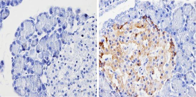 Chromogranin A Antibody in Immunohistochemistry (Paraffin) (IHC (P))