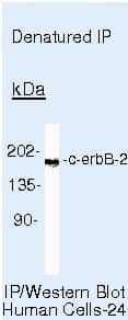 ErbB2 (HER-2) Antibody in Immunoprecipitation (IP)