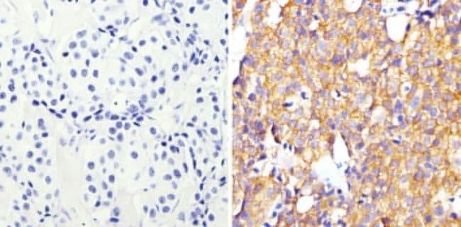 ErbB2 (HER-2) Antibody in Immunohistochemistry (Paraffin) (IHC (P))