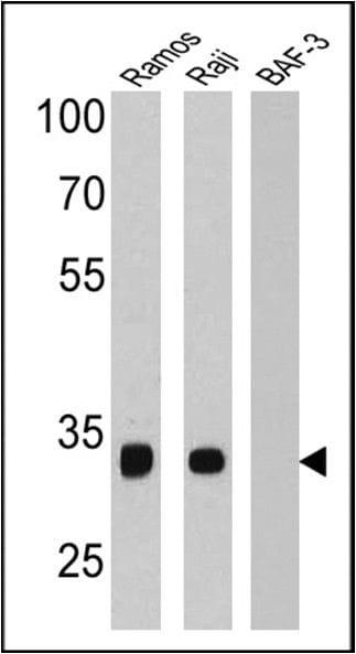 CD20 Antibody in Western Blot (WB)