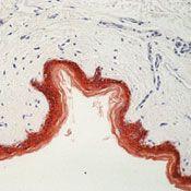 Cytokeratin Pan Type II Antibody in Immunohistochemistry (IHC)