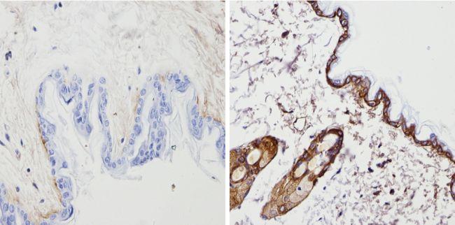 Cytokeratin Pan Type I/II Antibody in Immunohistochemistry (Paraffin) (IHC (P))