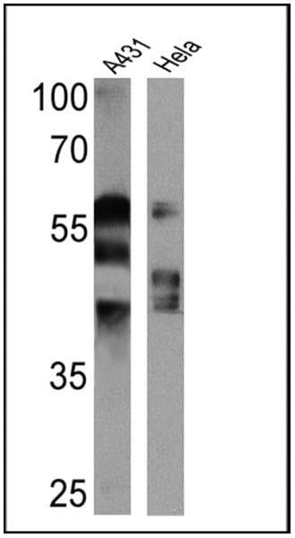 Cytokeratin Pan Type I/II Antibody in Western Blot (WB)