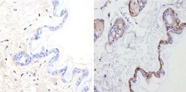 Cytokeratin Pan Antibody in Immunohistochemistry (Paraffin) (IHC (P))