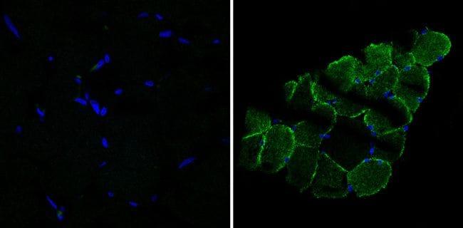 Desmin Antibody in Immunofluorescence (IF)