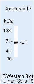 Estrogen Receptor alpha Antibody in Immunoprecipitation (IP)