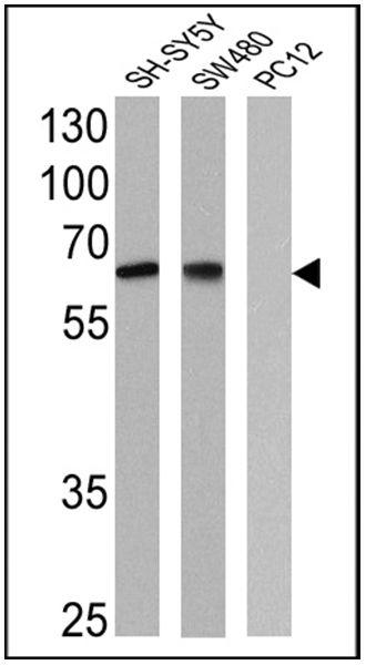 NGFR Antibody in Western Blot (WB)