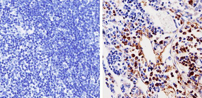 Cdk6 Antibody in Immunohistochemistry (Paraffin) (IHC (P))