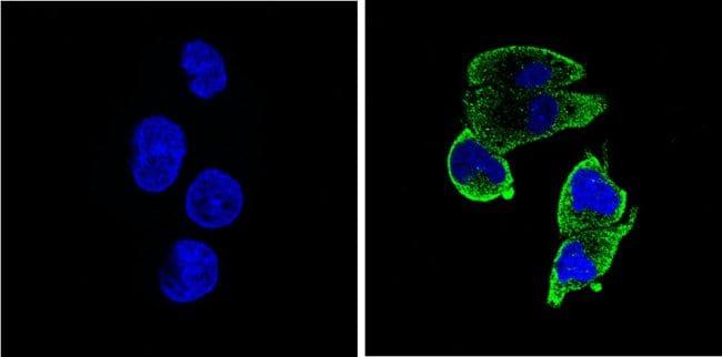 Thrombospondin 1 Antibody in Immunofluorescence (IF)