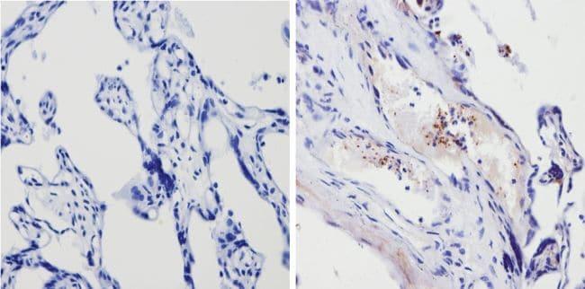 Thrombospondin 1 Antibody in Immunohistochemistry (Paraffin) (IHC (P))