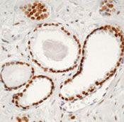 Androgen Receptor Antibody in Immunohistochemistry (IHC)