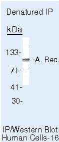 Androgen Receptor Antibody in Immunoprecipitation (IP)