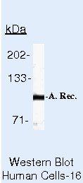Androgen Receptor Antibody in Western Blot (WB)