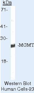 MGMT Antibody in Western Blot (WB)