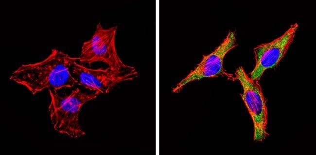 INSR beta Antibody in Immunofluorescence (IF)