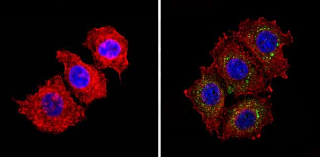 INSR Antibody in Immunofluorescence (IF)