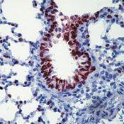 Nkx2.1 Antibody in Immunohistochemistry (IHC)