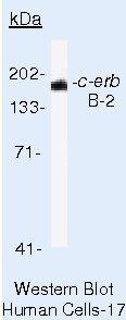 ErbB2 (HER-2) Antibody in Western Blot (WB)