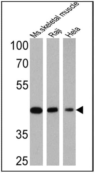 Actin Muscle Antibody in Western Blot (WB)