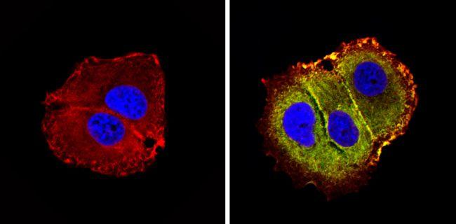 MMP9 Antibody in Immunocytochemistry (ICC/IF)