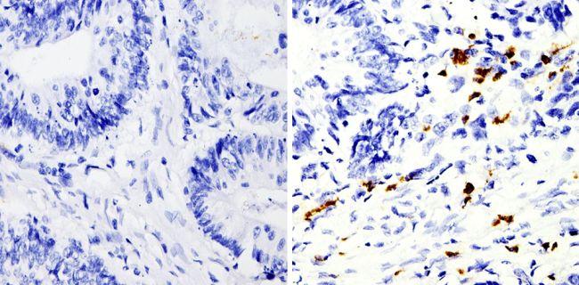 MMP9 Antibody in Immunohistochemistry (Paraffin) (IHC (P))