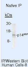 p14ARF Antibody in Immunoprecipitation (IP)