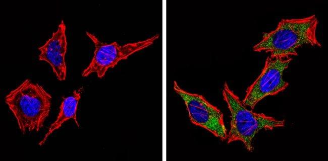 Cyclin B1 Antibody in Immunofluorescence (IF)