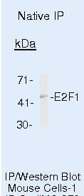 E2F1 Antibody in Immunoprecipitation (IP)