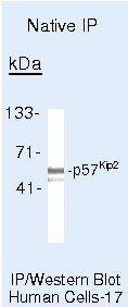 p57 Kip2 Antibody in Immunoprecipitation (IP)