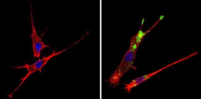 c-Abl Antibody in Immunofluorescence (IF)