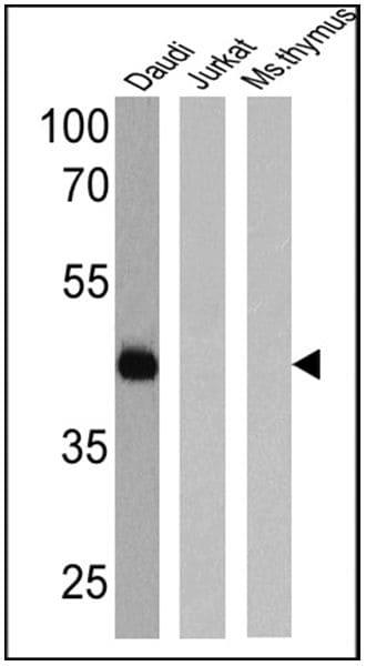 CD38 Antibody in Western Blot (WB)