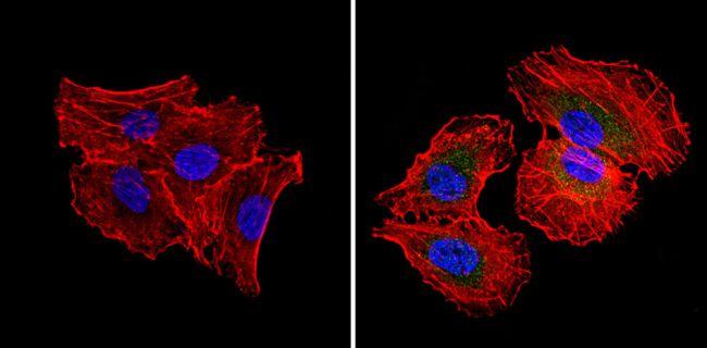 RAD51 Antibody in Immunofluorescence (IF)