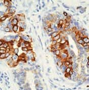 Cytokeratin 8 Antibody in Immunohistochemistry (IHC)
