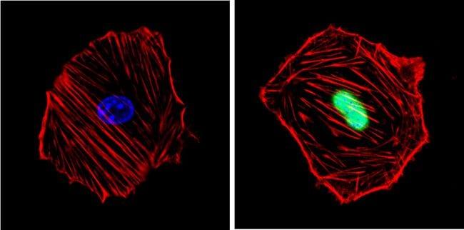 Cyclin D1 Antibody in Immunofluorescence (IF)