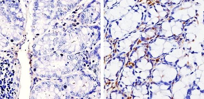 Cyclin D1 Antibody in Immunohistochemistry (Paraffin) (IHC (P))