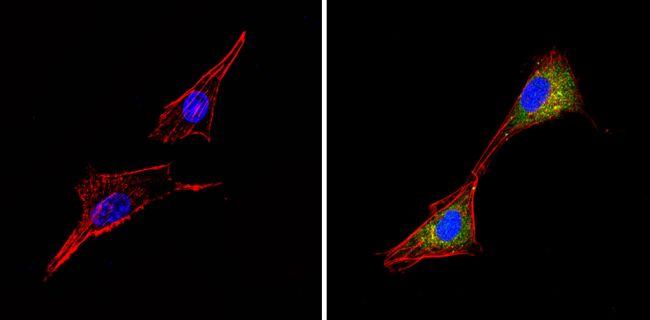 ALK Antibody in Immunofluorescence (IF)